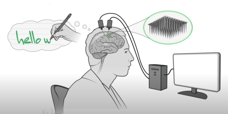 Technology Neural implant lets paralyzed person type by imagining writing